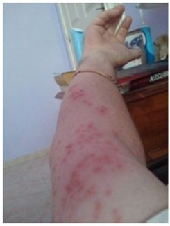 Rash caused by Agave plant